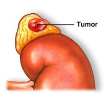 Böbrek üstü bezi tümörü
