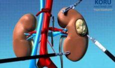 Böbrek kisti ameliyatında robotik cerrahi